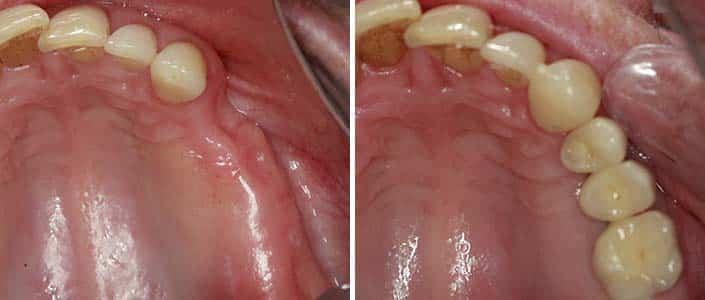 example of 3 tooth bridge off 2 implants