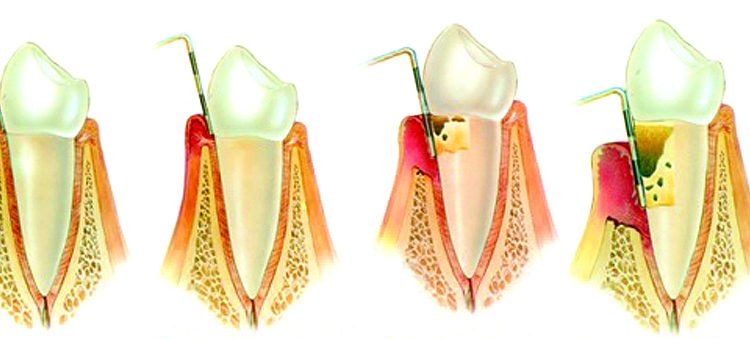 Periodontic stages