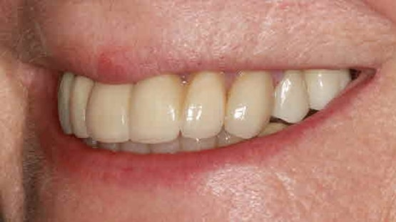 after ceramic crowns