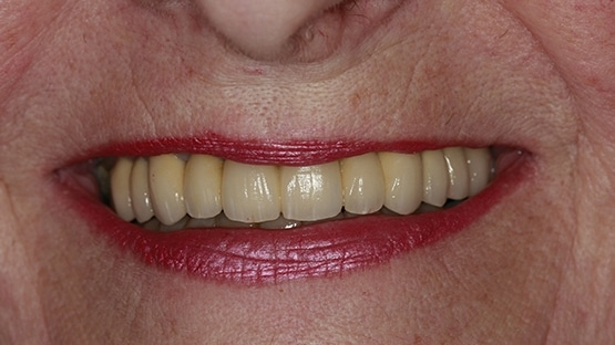 after dental crowns