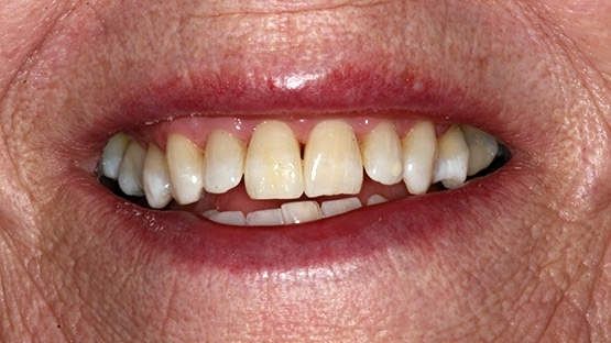 after tooth whitening