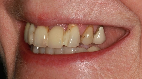 before ceramic crowns