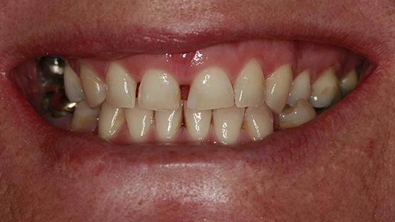 Before Dental Implant Treatment