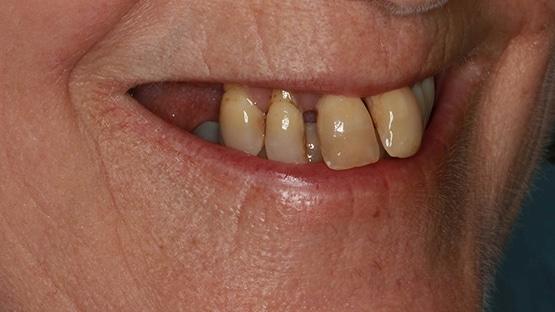 before Same Day Teeth
