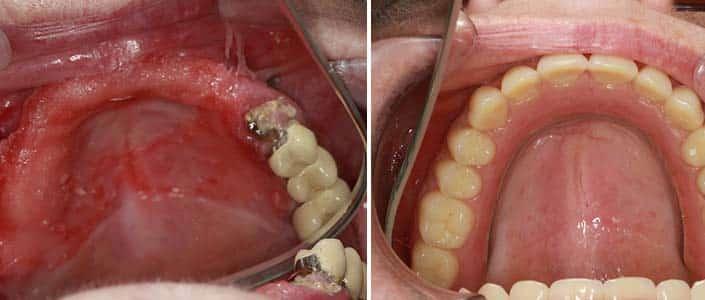 denture stabilisation example