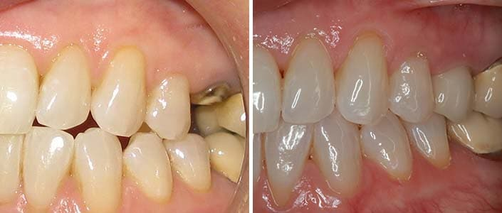 Image of single tooth implant
