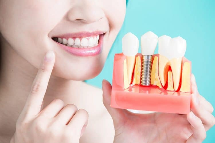 What is a dental implant?